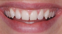 Discoloured teeth can be treated in a single visit