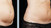 Change your life by removing unwanted fat to get back the body you want