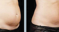Get the body you want by removing unwanted fat