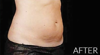Remove unwanted fat to get the body you want